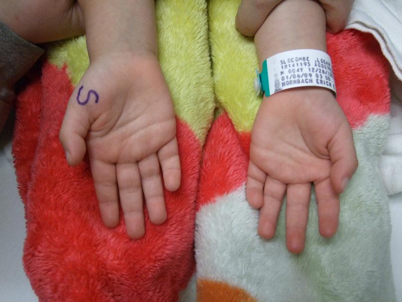 humanitarne akcije za bolesnu djecu
