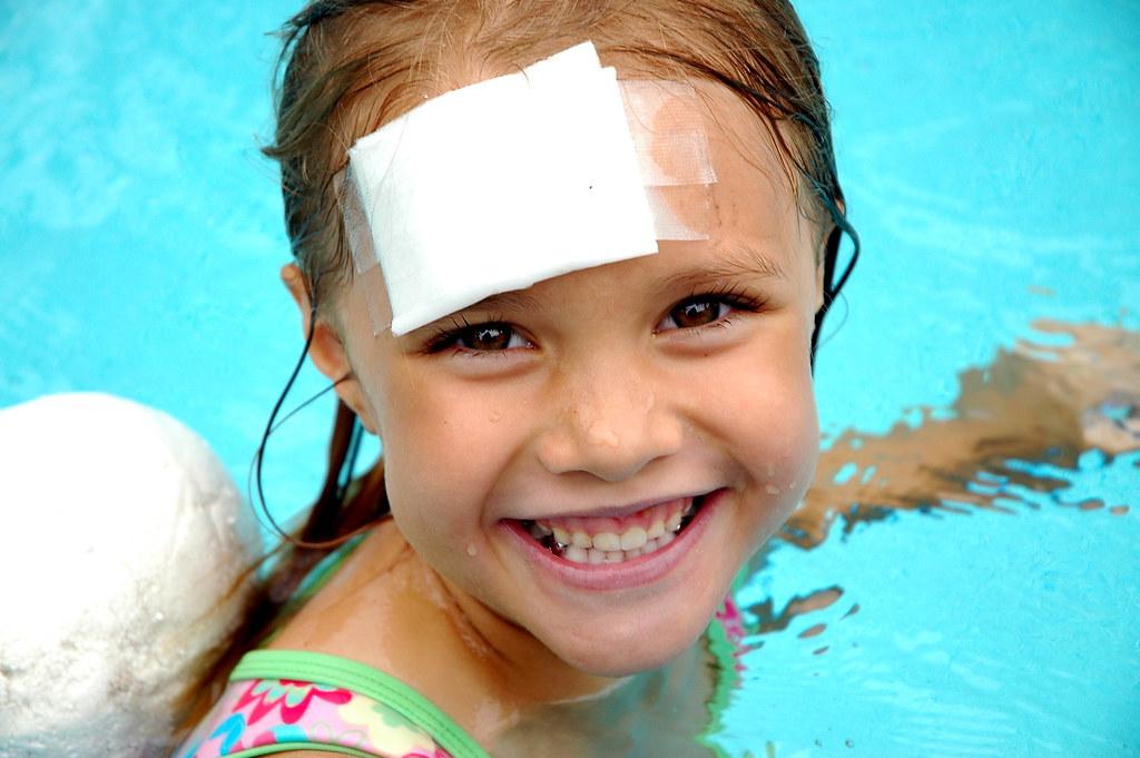 Do desete godine djeca najčešće ozljeđuju glavu, starija djeca lome podlaktice